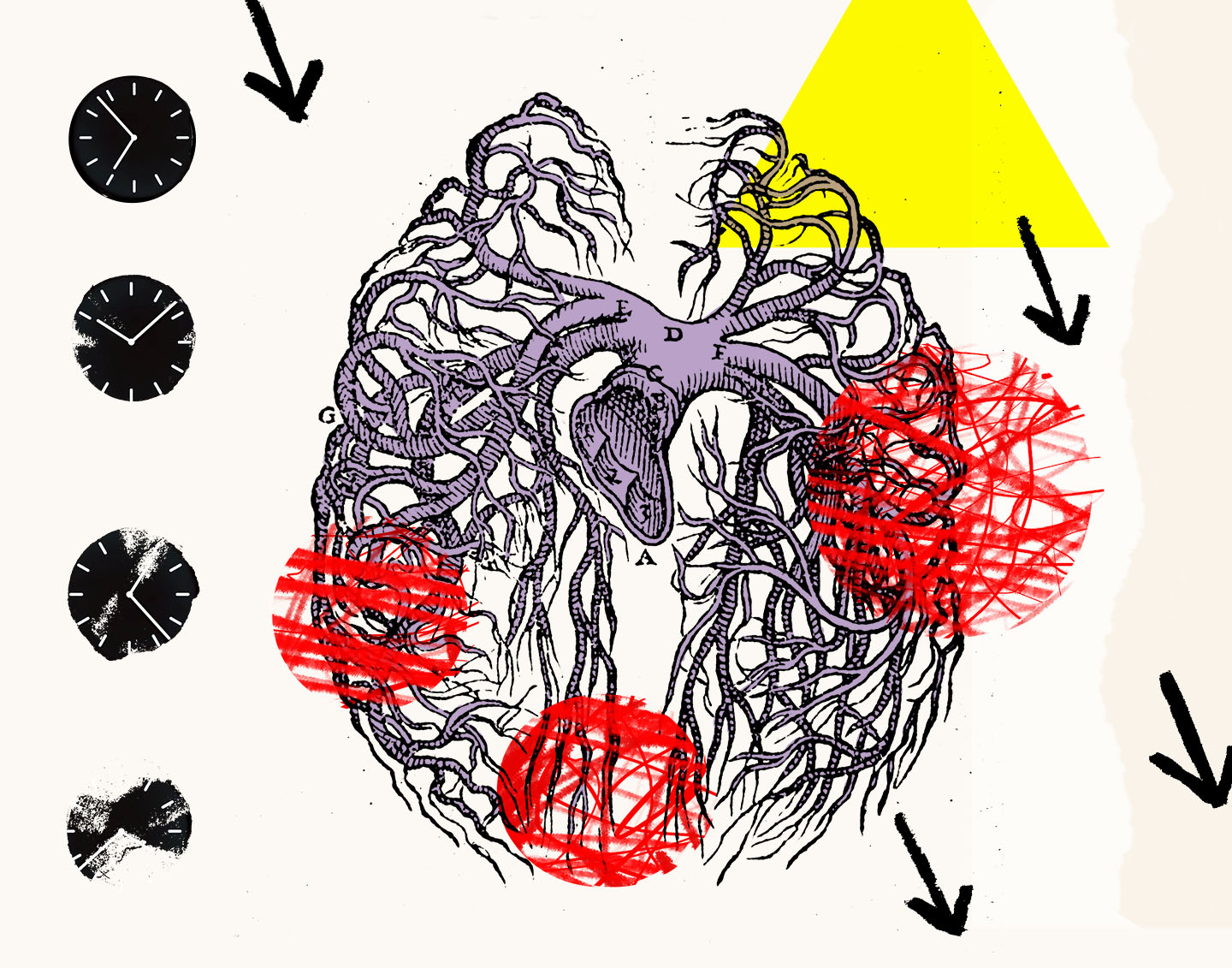 A collage with a clock, vascular system, and inflammation.
